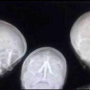 AZ Jan Portaels Vilvoorde - Dienst Radiologie